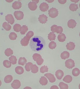 This is a photo of one of Gao Gao's healthy white blood cells, surrounded by normal red blood cells.