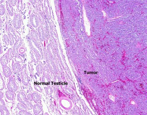 This photomicrograph (taken through a microscope) shows the tumor on the right-hand side compressing the normal testicular tissue on the left.